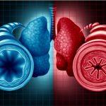 bronquios sanos y bronquios cerrados