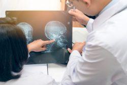radiografía cabeza