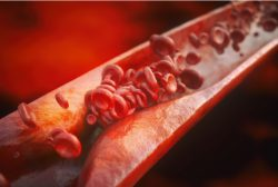 Arterosclerosis provocada por falta de control del colesterol