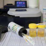 dispositivo para medir posible enfermedad renal