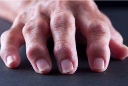 baricitinib en artritis reumatoide