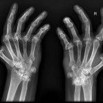 Marcador artrosis