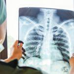 """SEPAR considera el cáncer de pulmón """"una pandemia evitable"""""""