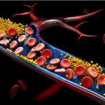 Acumulación de colesterol en las arterias, marca el riesgo cardiovascular