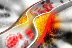 Mantener el colesterol en rango es clave en prevención secundaria