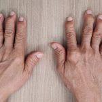 pacientes con artrosis
