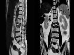 fracturas vertebrales por osteoporosis