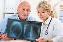 personas con cáncer de pulmón