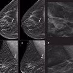 tomosíntesis con mamografía sintética