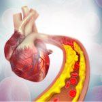 Rosuvastatina y ezetimiba, indicadas para reducir el riesgo cardiovascular ante cifras elevadas de LDL