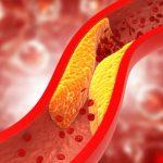 hipercolesterolemia por la inercia y el incumplimiento