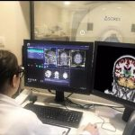 hipertensión arterial y Alzheimer