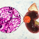 Carcinoma de células renales avanzado