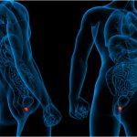 Cáncer de próstata hormonosensible metastásico