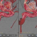 Nueva herramienta Azurion permite diagnosticar lesiones neurológicas rápidamente