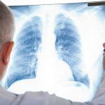 La UE aprueba el osimertinib para el tratamiento adyuvante de pacientes con cáncer de pulmón no microcítico