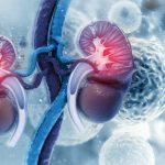 supervivencia del cáncer renal