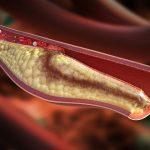 Asociar rosuvastatina y ezetimiba consigue mejores objetivos terapéuticos