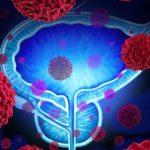 biomarcadores en cáncer de próstata avanzado