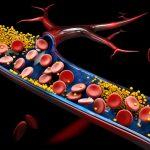 El principal objetivo en alto riesgo cardiovascular es reducir el colesterol