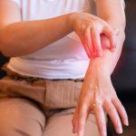 Urticaria crónica afecta radicalmente la calidad de vida del paciente