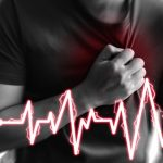 enfermedad-coronaria-aguda