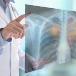cribado de cáncer de pulmón