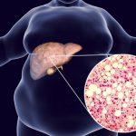 grasa hepática